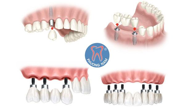Một số trường hợp áp dụng công nghệ trồng răng Implant