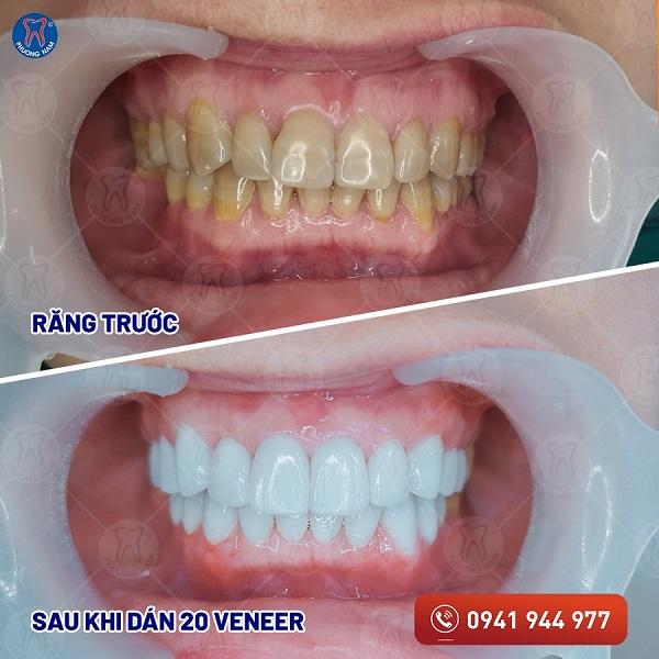 Sứ veneer chấm dứt tình trạng răng nhiễm màu - 1