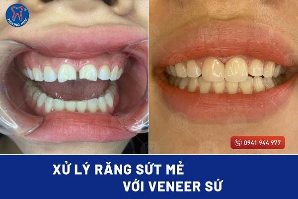 Dán sứ Veneer có thể khắc phục răng sứt mẻ hoàn hảo - 1