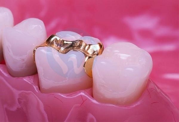Vật liệu vàng thường được các vị khách hàng lớn tuổi sử dụng - 1