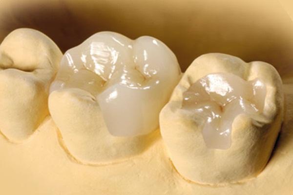 Phương pháp hàn răng Inlay - Onlay có thể hàn được cả lỗ hổng to - 1