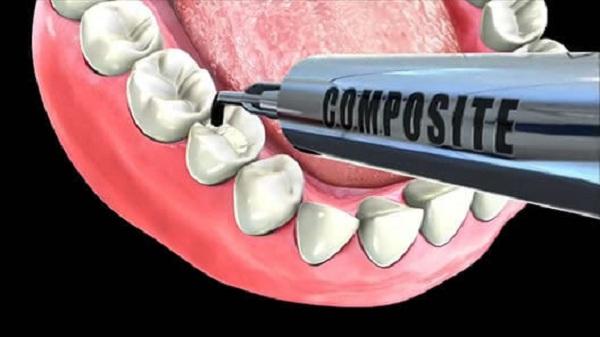 Hàn trám răng có thể giúp bạn duy trì 1 hàm răng khỏe mạnh mà không gây ê buốt - 1