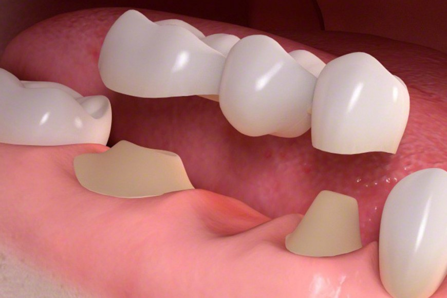 Làm cầu răng sứ mang thay thế răng thật đảm bảo thẩm mỹ cao1