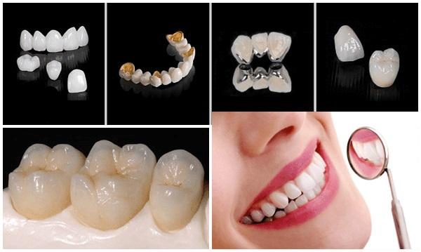 Cấu tạo răng sứ bền chắc, hợp màu sắc1