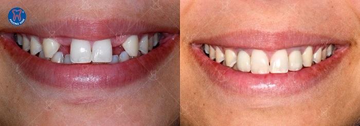 Cầu răng sứ khắc phục tình trạn mất răng hiệu quả - 1
