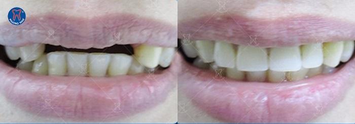 Chỉ cần 2 răng bên cạnh còn khỏe chúng ta hoàn toàn có thể làm cầu răng sứ - 1