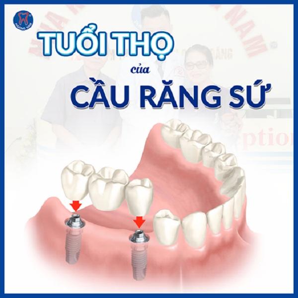 Phương pháp làm cầu răng sứ có tuổi thọ khá dài nếu bạn chăm sóc răng miệng đúng cách - 1