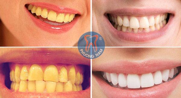 Các trường hợp răng xuống màu thường gặp - 1