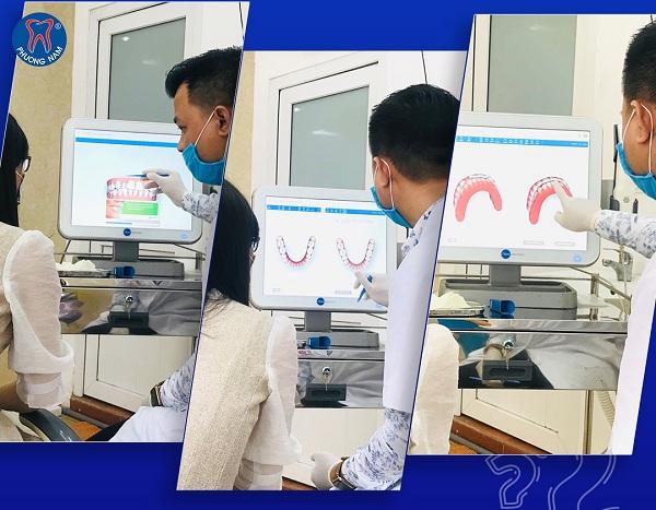 Đối với niềng răng trong suốt bạn hoàn toàn có thể xem trước được kết quả trong quá trình thăm khám - 1