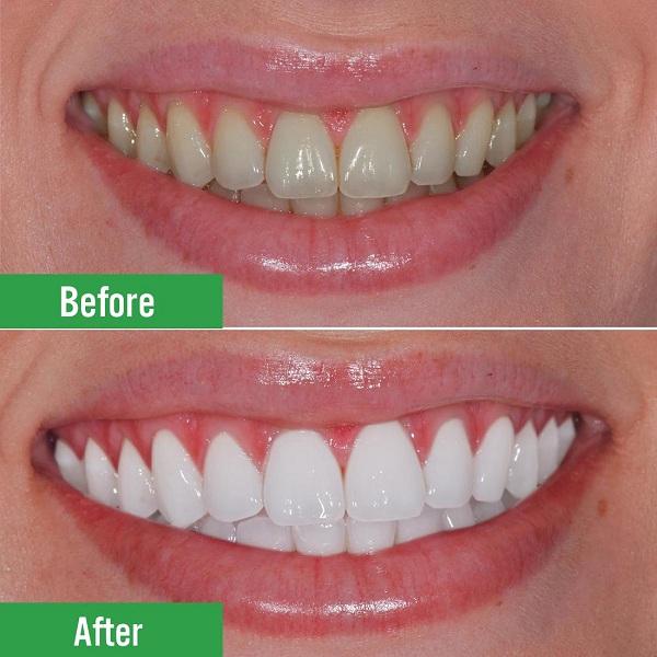 Tẩy trắng răng tại nhà cần phải theo hướng dẫn của bác sĩ để có kết quả tốt nhất - 1