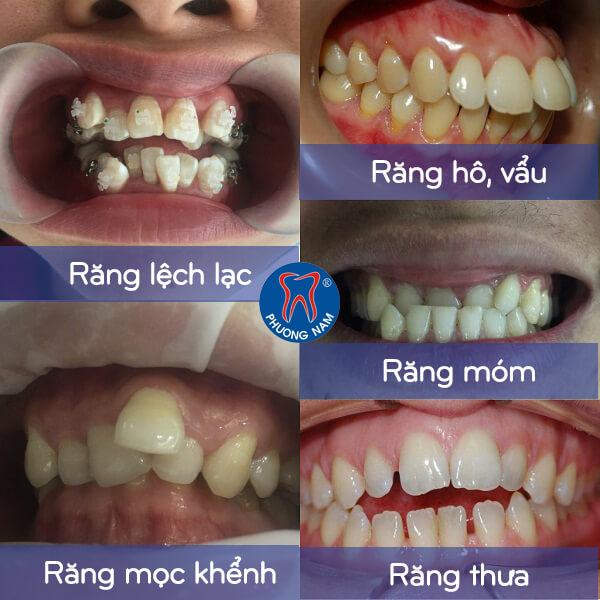 Các trường hợp nên áp dụng niềng răng mắc cài 3D UGSL - 1