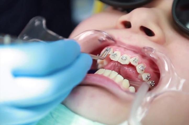 Quy trình niềng răng diễn ra như thế nào là những vấn đề bạn cần nắm được trước khi thực hiện nắn chỉnh1