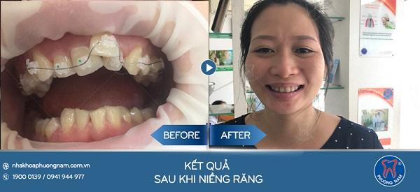 Kết quả niềng răng của vị khách hàng trên 40 tuổi1