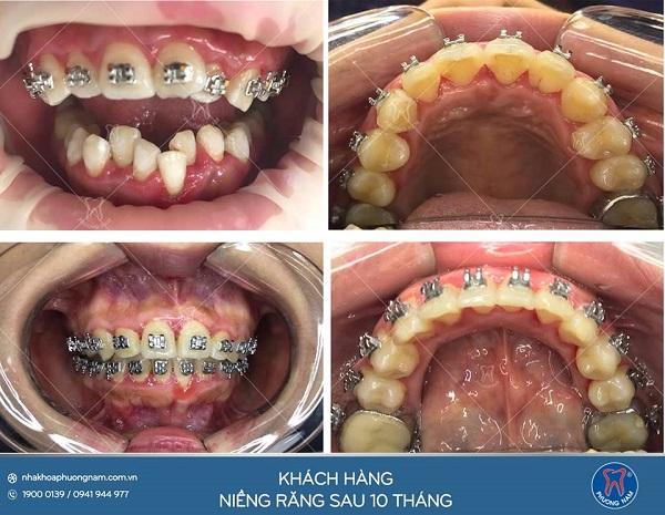 Kết quả niềng răng chỉ sau 10 tháng1