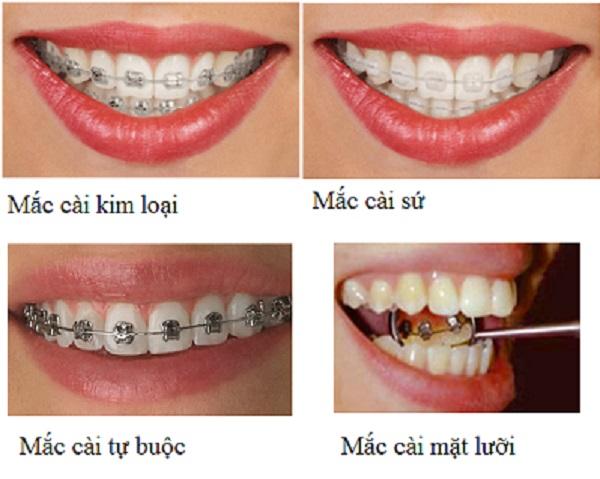 Các loại mắc cài cũng ảnh hưởng tới kết quả niềng răng bao lâu