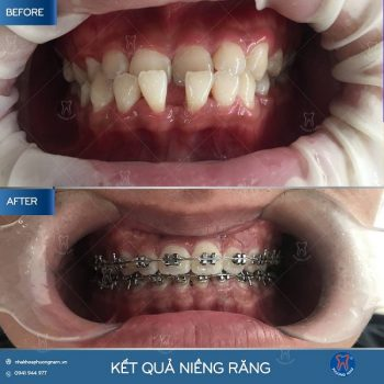 Hàm móm hoàn toàn có thể khắc phục được nhờ niềng răng - 1