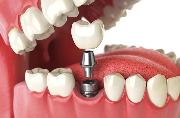 Chi phí trồng răng phụ thuộc vào nhiều yếu tố1