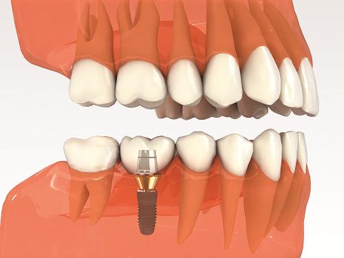 Bạn nên tìm hiểu kỹ chi tiết trước về mọi chi phí trồng răng