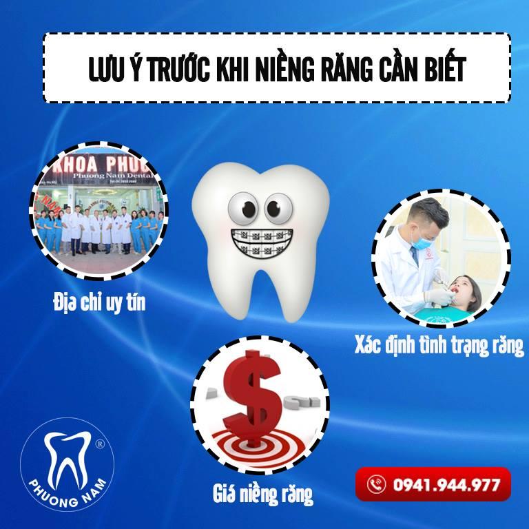 Bạn cần nắm được các lưu trước khi niềng răng để có được kết quả tốt nhất1