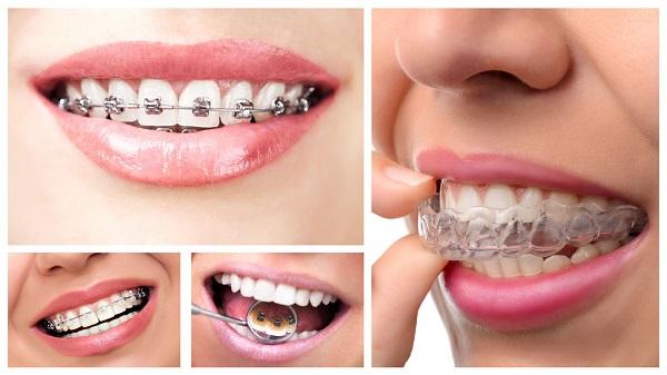Mỗi loại mắc cài lại có mức chi phí niềng răng khác nhau1
