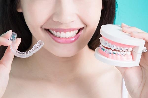 Lựa chọn mắc cài phù hợp với điều kiện kinh tế cũng như tình trạng răng của bạn1