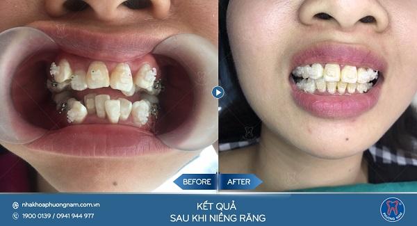 Răng khấp khểnh có thể khắc phục được 100% nhờ niềng răng1