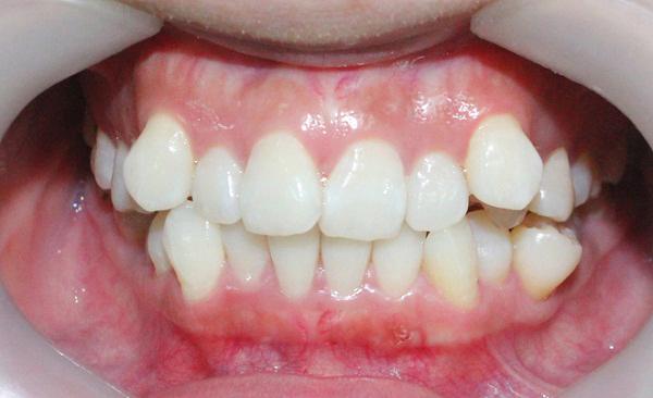 Răng khấp khểnh nên bọc sứ hay niềng răng?1