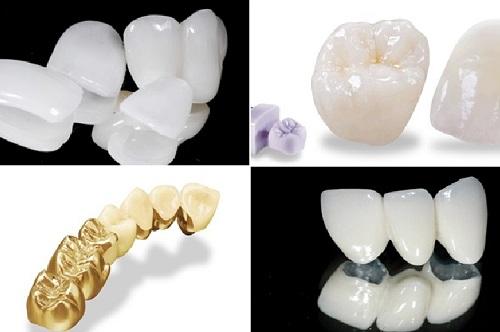 Có khá nhiều loại răng sứ trên thị trường1