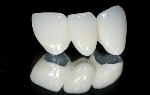Răng sứ titan thường có tuổi thọ ngắn và gây ra tình trạng đen nướu1