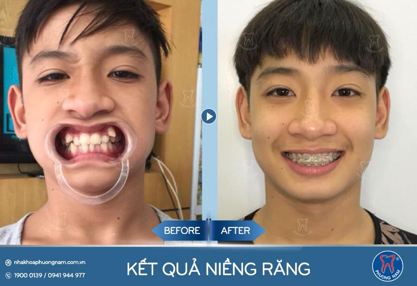 Hơn 6000 ca niềng răng thành công tại nha khoa Phương Nam 1