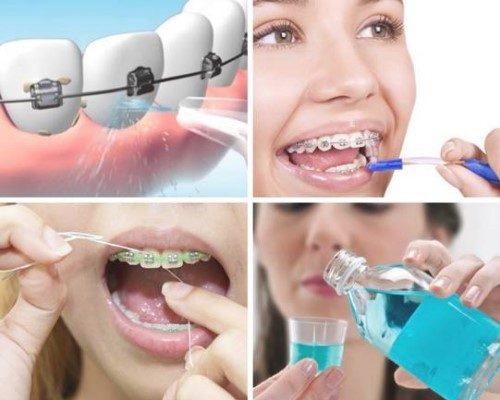 Chế độ chăm sóc sau khi niềng răng ảnh hưởng trực tiếp tới kết quả sau này1
