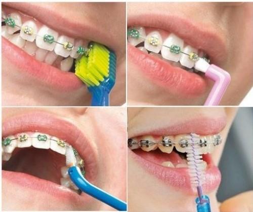 Một số thao tác vệ sinh sau khi niềng răng1