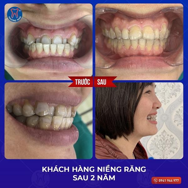 Cận cảnh hàm răng khớp cắn ngược trước và sau khi làm tại nha khoa Phương Nam - 1