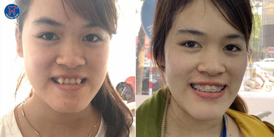 Niềng răng là giải pháp khắc phục tình trạng khớp cắn ngược tốt nhất - 1