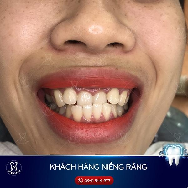 Tình trạng khớp cắn ngược do răng chìa ra ngoài - 1