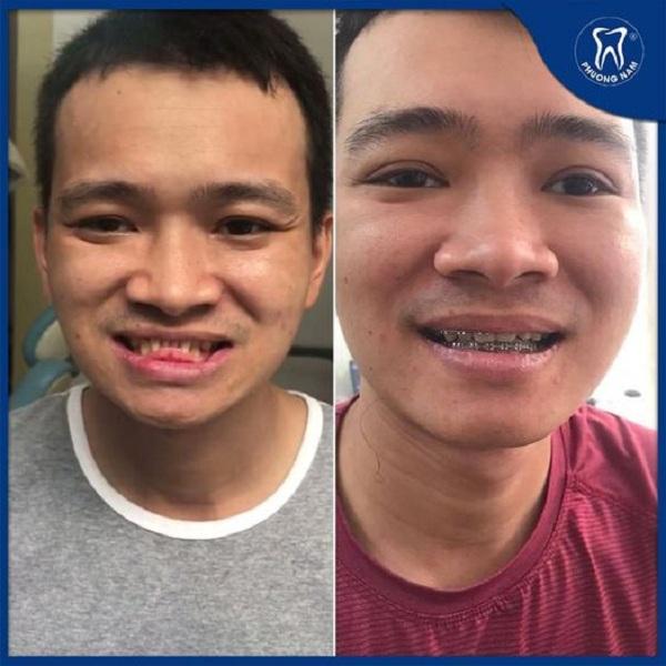 Trường hợp của anh Chiến ( KH niềng răng tại Phương Nam) là khớp cắn ngược do xương điển hình - 1