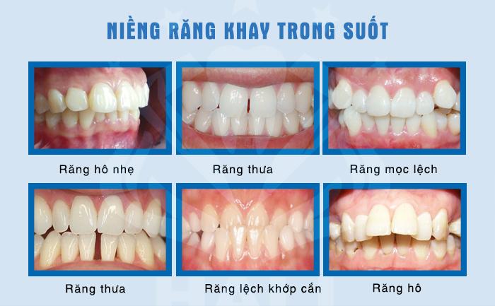 Các trường hợp thích hợp niềng răng Invisalign-1