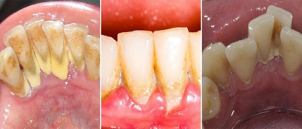 Cao răng lâu ngày sẽ trở thành mảng bám ảnh hưởng tới chất lượng ăn nhai - 1