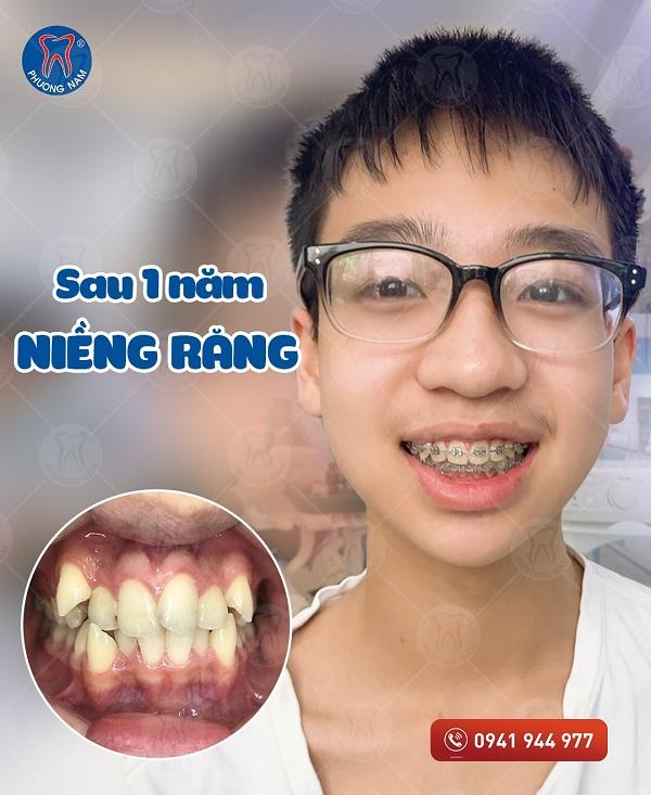 Trẻ niềng răng với mắc cài cũng khá nhanh và hiệu quả - 1