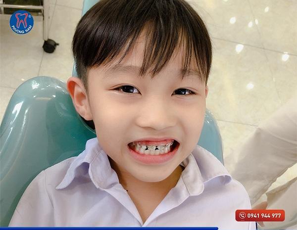 Niềng răng cho trẻ - chắp cánh nụ cười tự tin cho con trẻ - 1