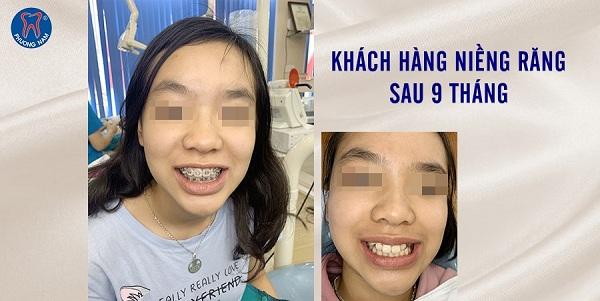 Niềng răng điều trị được nhiều khuyết điểm răng của con trẻ - 1