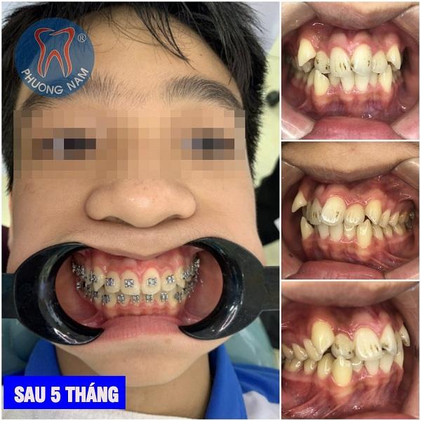 Cha mẹ hãy là người đồng hành cũng con trong việc chỉnh sữa hàm răng - 1