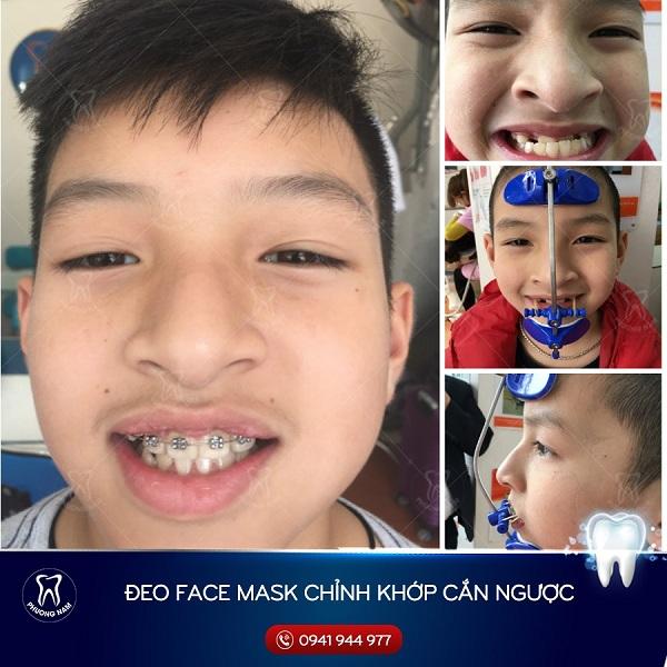 Kết quả niềng răng với khí cụ điều trị khớp cắn ngược - 1