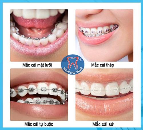 Các loại mắc cài niềng răng phổ biến nhất hiện nay - 1