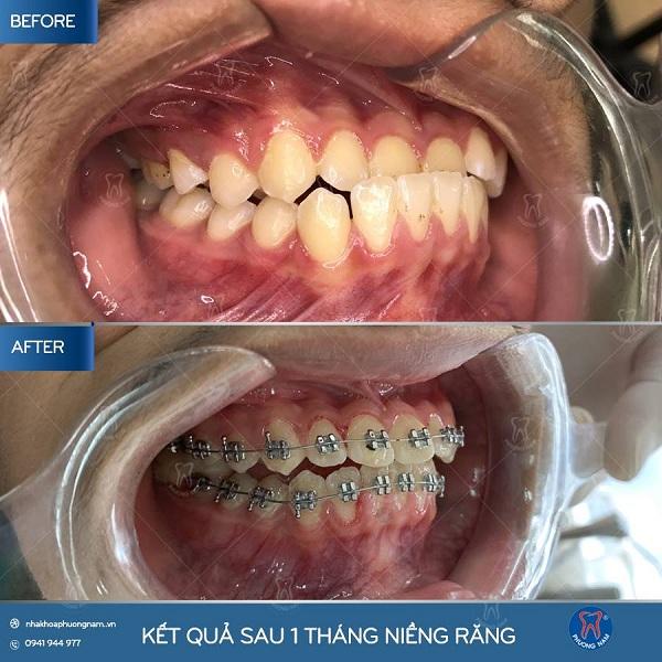 Niềng răng mắc cài là phương pháp chỉnh lại những khuyết điểm của hàm răng - 1