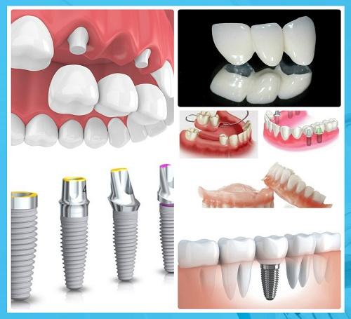 Chi phí trồng răng giả bao nhiêu? Các phương pháp phổ biển - 1