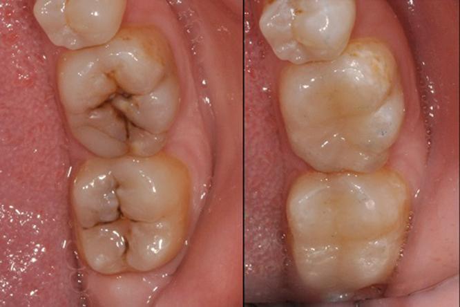 Trám răng sớm để có được 1 hàm răng khỏe mạnh không ảnh hưởng ăn nhai