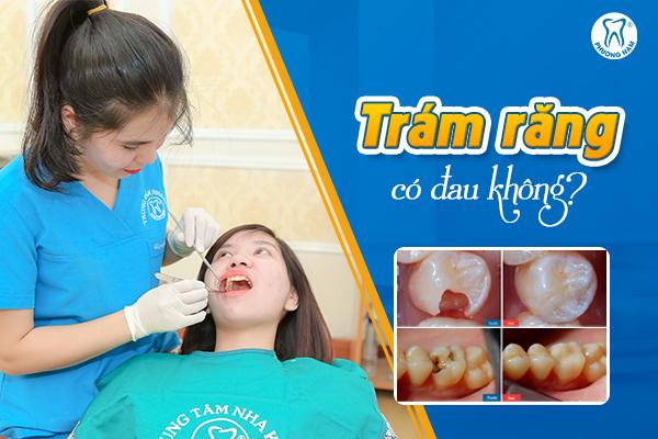 Trám răng có thực sự đau như bạn vẫn nghĩ?