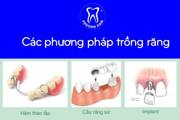 Mỗi phương pháp trồng răng giả sẽ có mức chi phí khác nhau - 1
