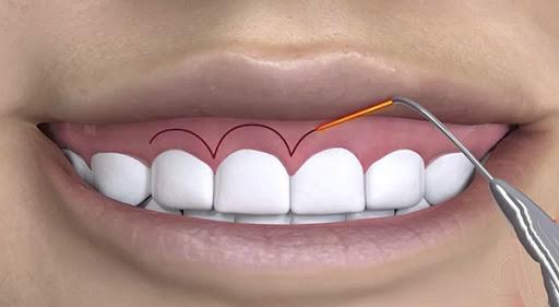 Cắt lợi là phương pháp thường được sử dụng để chữa cười hở lợi nhiều nhất - 1